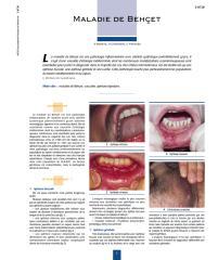 maladie de behcet.pdf